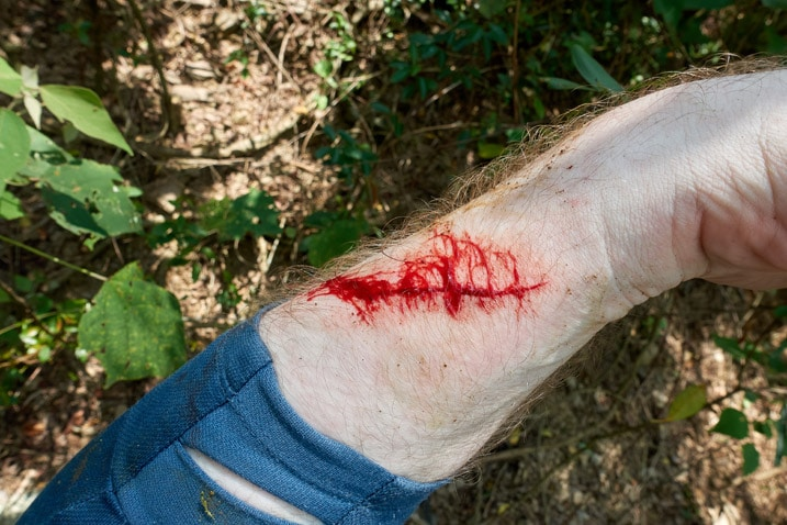 Man's arm with bloody cut
